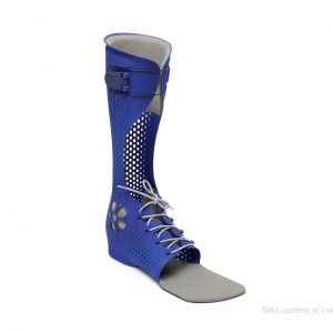 Foot ankle orthosis printed with HP Jet Fusion 3D 4200